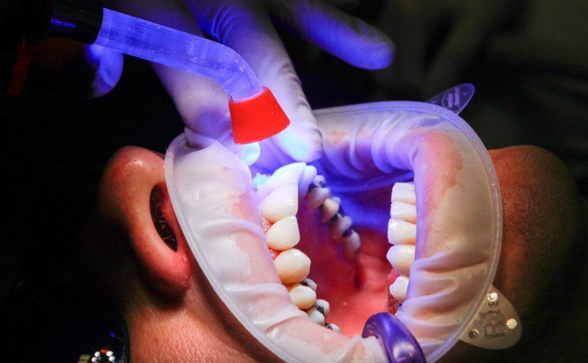 Zły sposób odżywiania się to większe niedostatki w jamie ustnej a dodatkowo ich zgubę